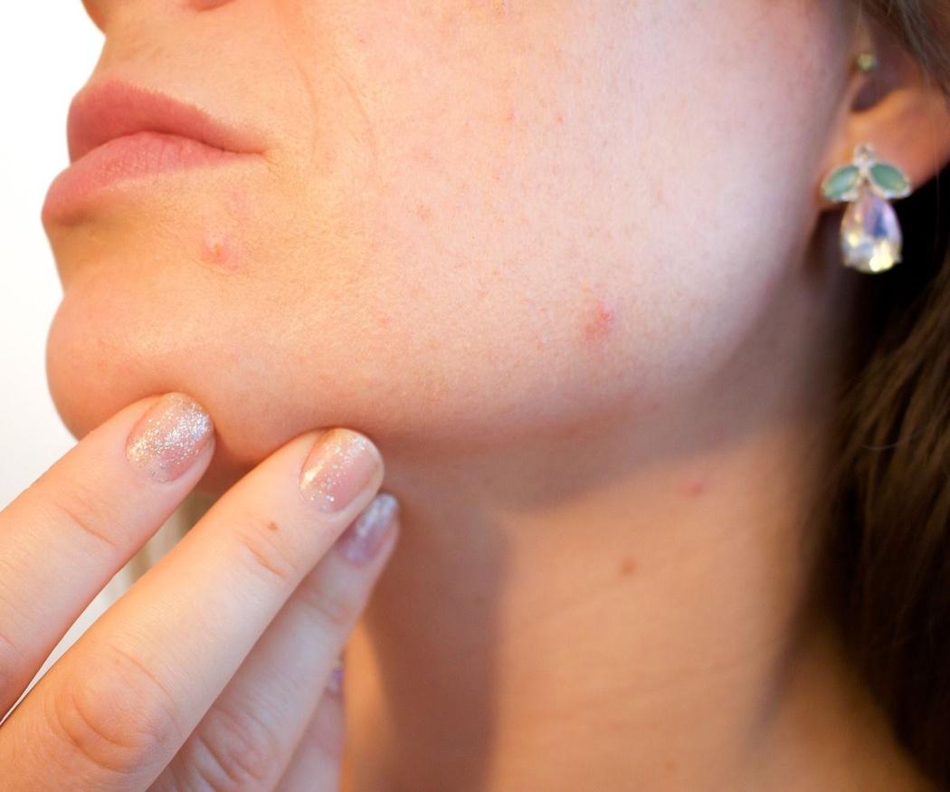 El ácido glicólico para eliminar manchas y acné