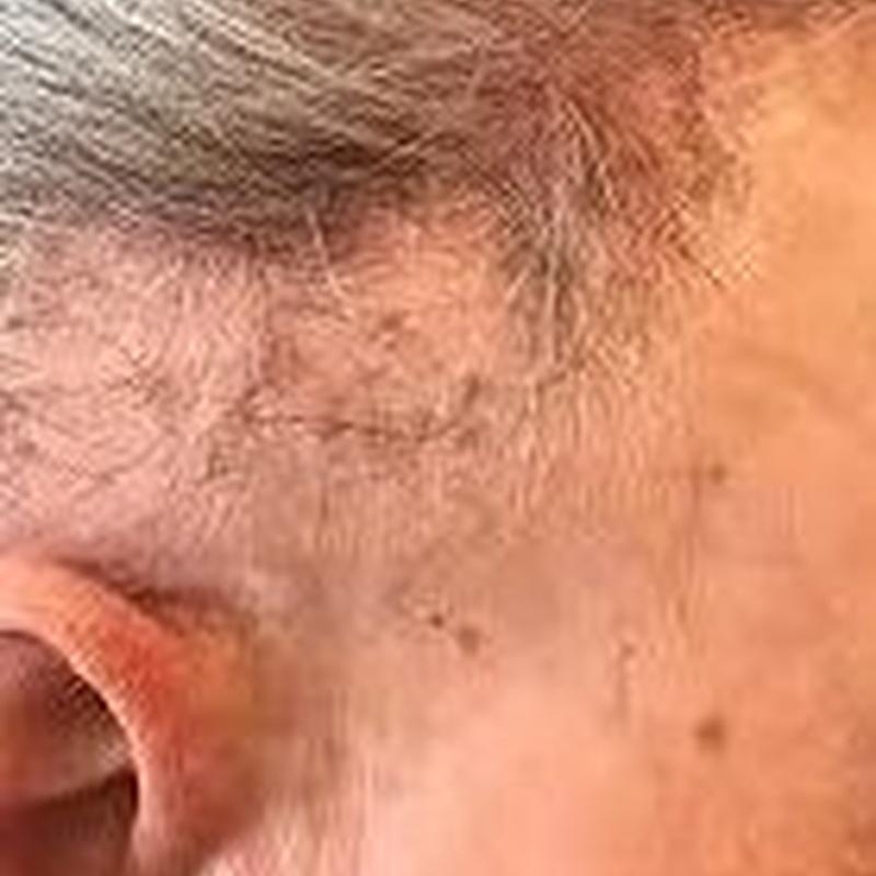 Alopecia: Dermatología y Dermoestética de Dermatología Socorro Fierro