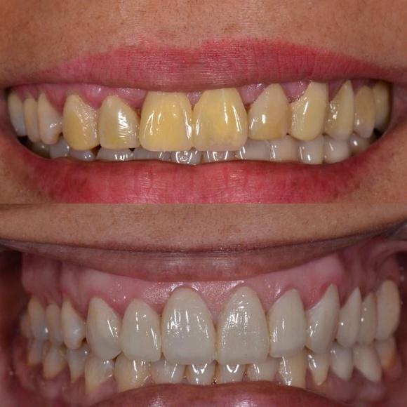 Blanqueamiento dental: Tratamientos de Bucalplus