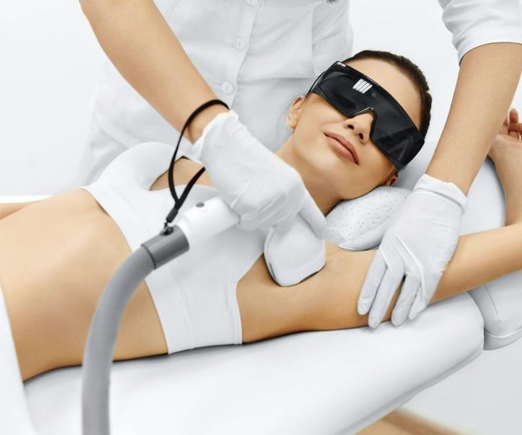 Tres preguntas habituales sobre la depilación láser