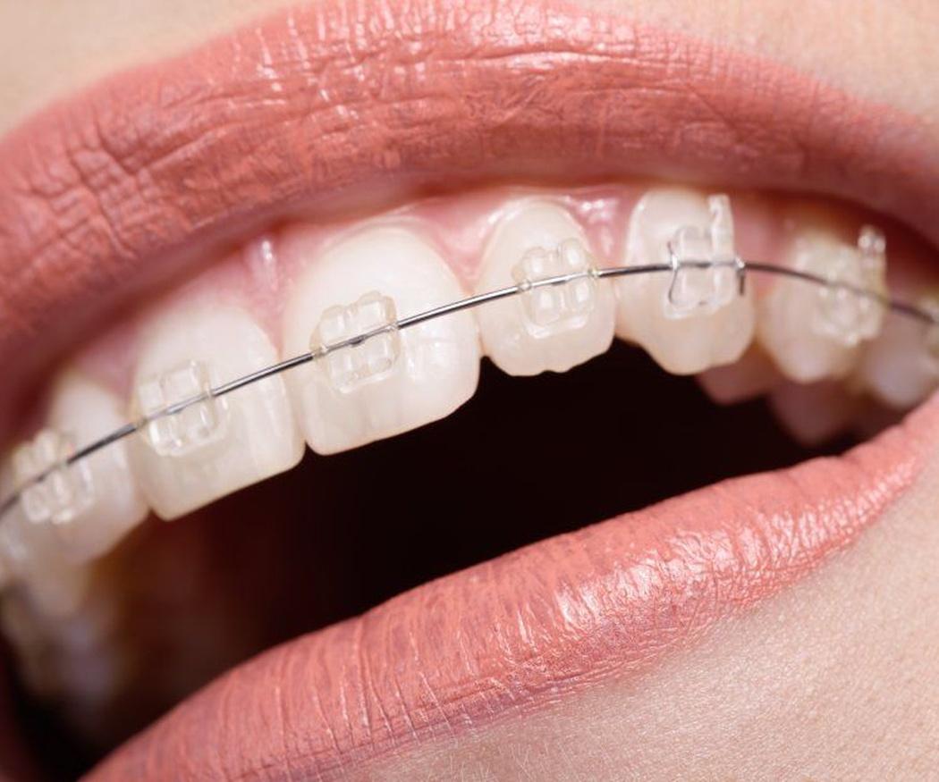 Ventajas destacadas de la ortodoncia invisible