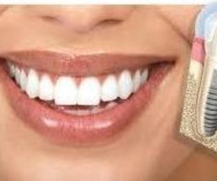 Implantes dentales : Tratamientos  de Clínica Dental Eladio Angulo