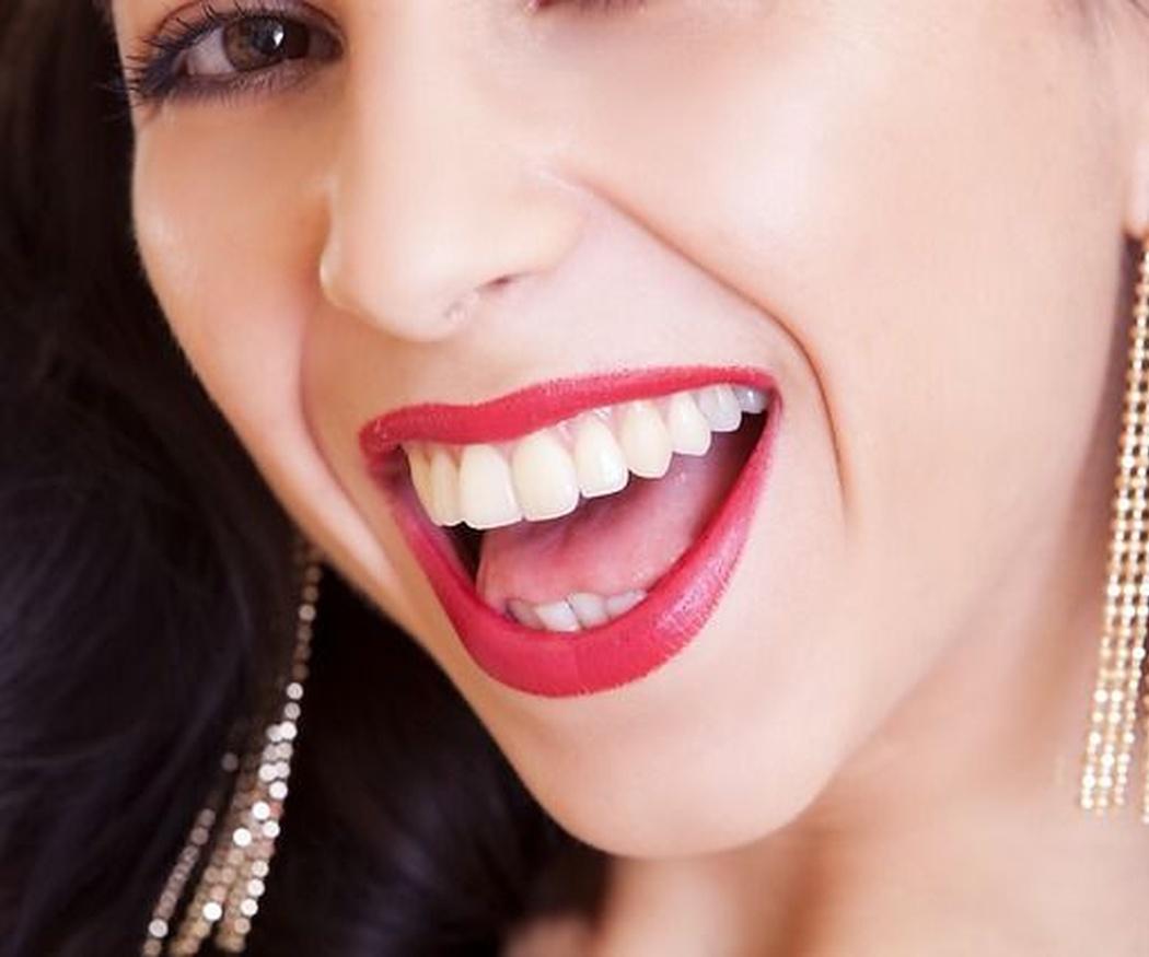 Claves del blanqueamiento dental