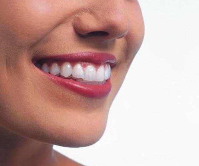 Invisalign: Odontología y Terapias de Centre Odontològic Sant Quirze