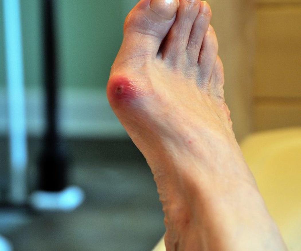Juanetes: cómo corregirlos y aliviar el dolor sin cirugía