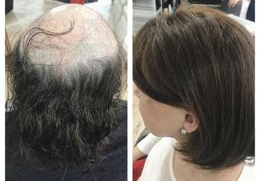 Hair prostheses