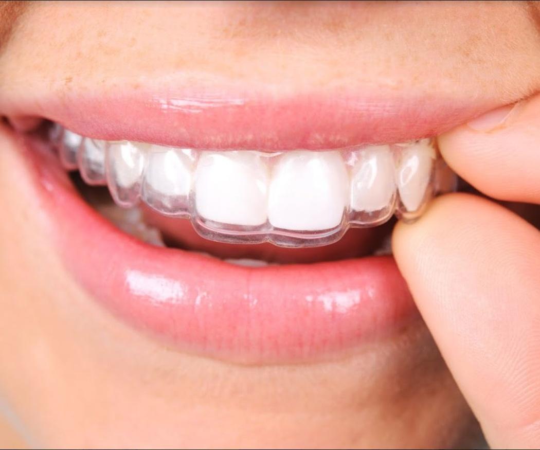 ¿En qué me beneficiará una ortodoncia dental?