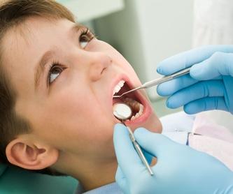 Prótesis dentales: Centro Dental de Centro Dental Alemán