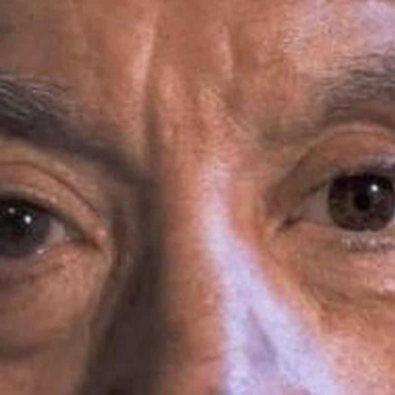 Prótesis oculares: ¿Qué hacemos? de Centro Visión Cruces