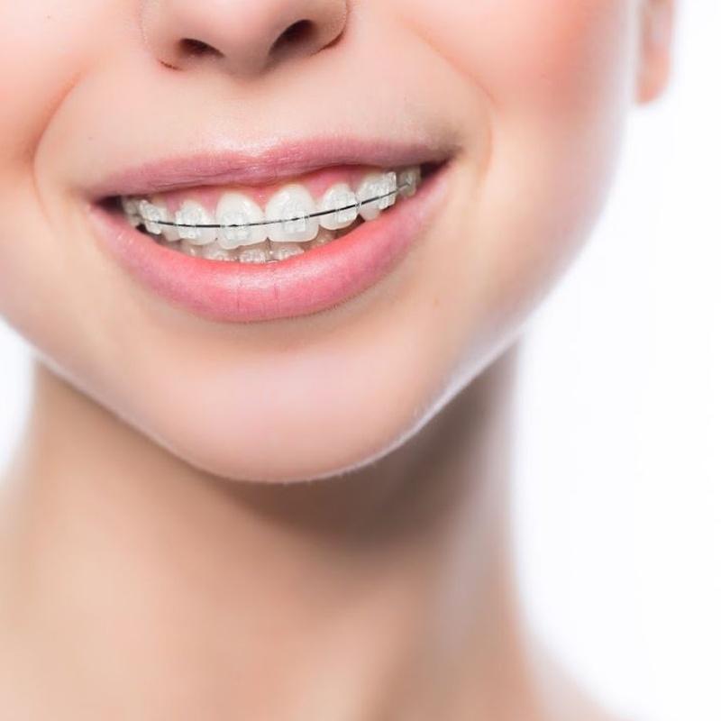 Ortodoncia: Especialidades de Clínica Dental Larumbe y Jiménez