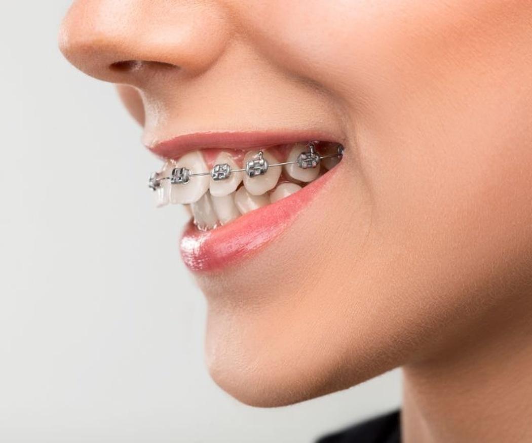 La oclusión dental defectuosa, un problema estético que tiene solución