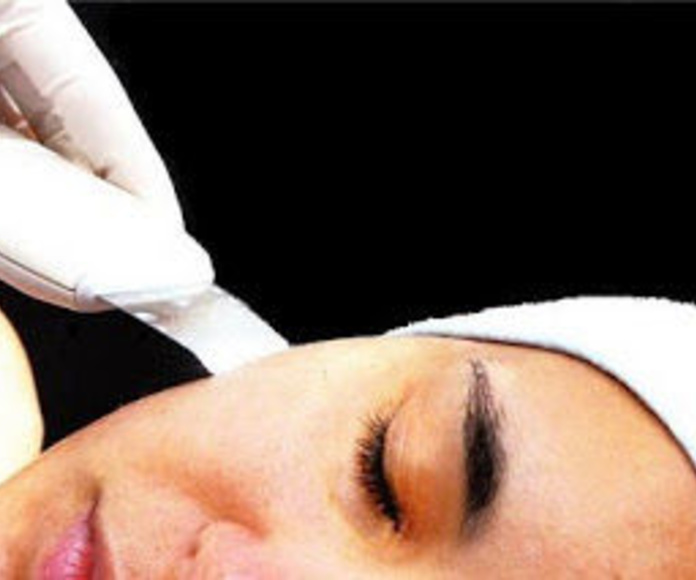 Peeling ultrasonico: Tratamientos de Eterna Belleza