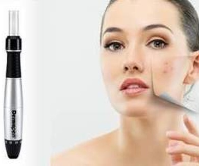 Dermapen: Rejuvenecimiento facial