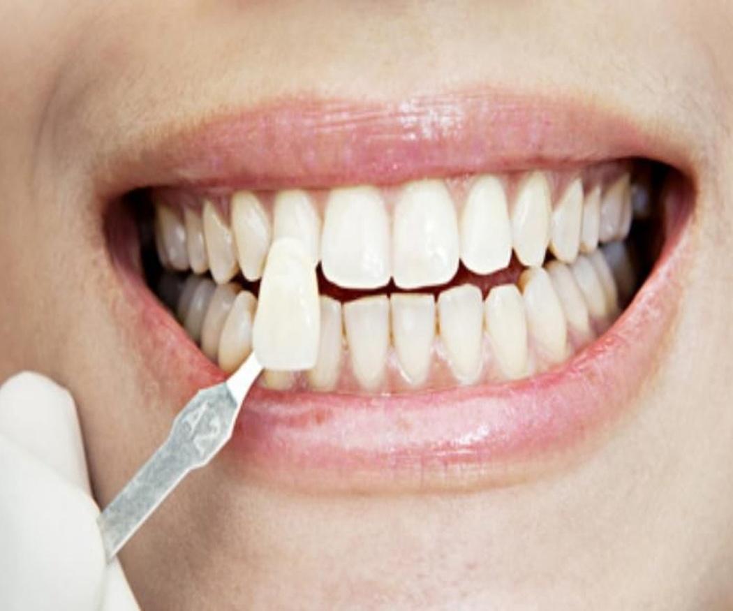 El mejor candidato para llevar carillas dentales