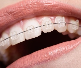 Ortodoncia invisible