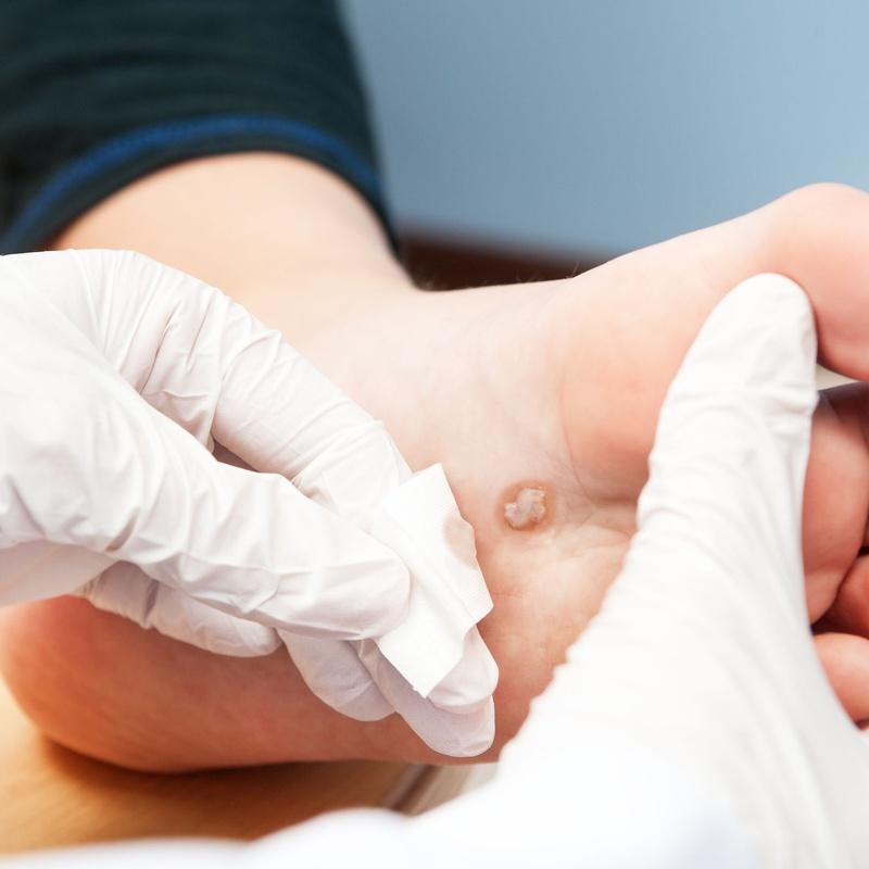 Verrugas: Dermatología y Dermoestética de Dermatología Socorro Fierro