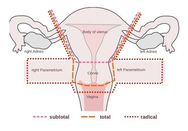 Histerectomía total con anexectomía