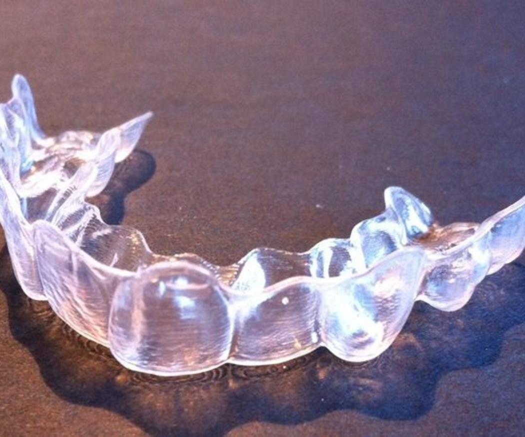 Apuesta por la ortodoncia invisible