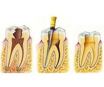 Prostodoncia: Tratamientos de Clident