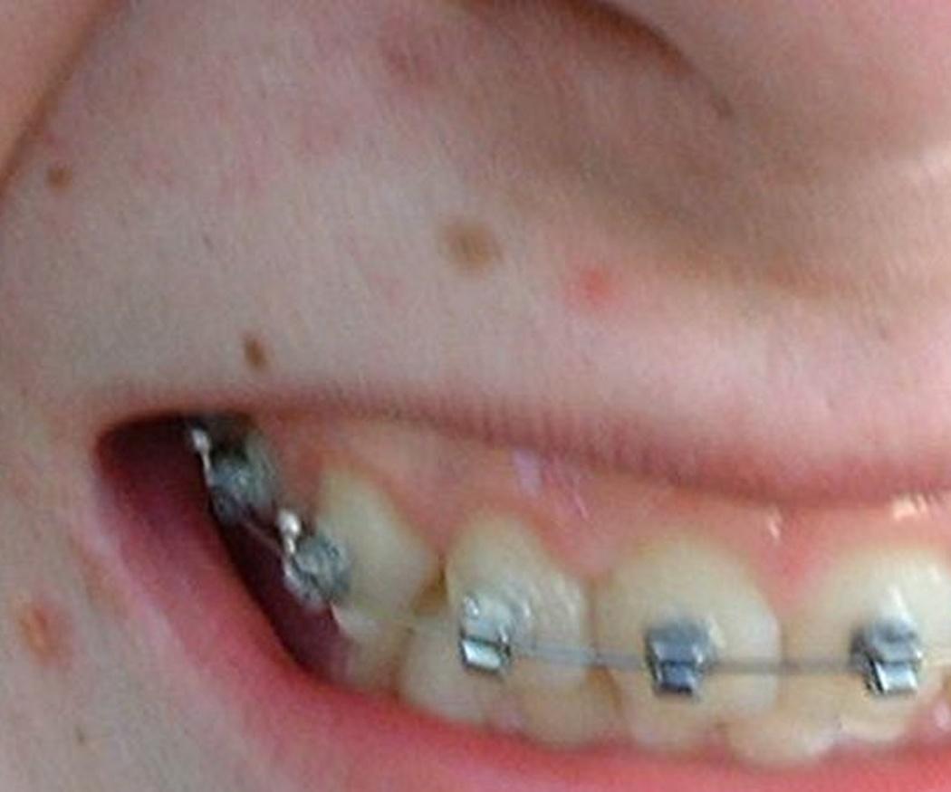 La edad recomendable para la ortodoncia