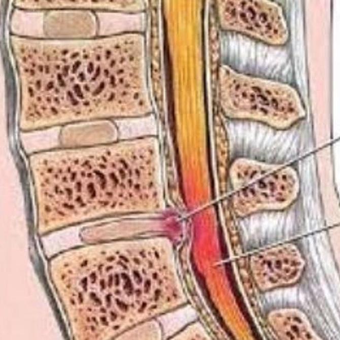 ¿Qué es una hernia discal?