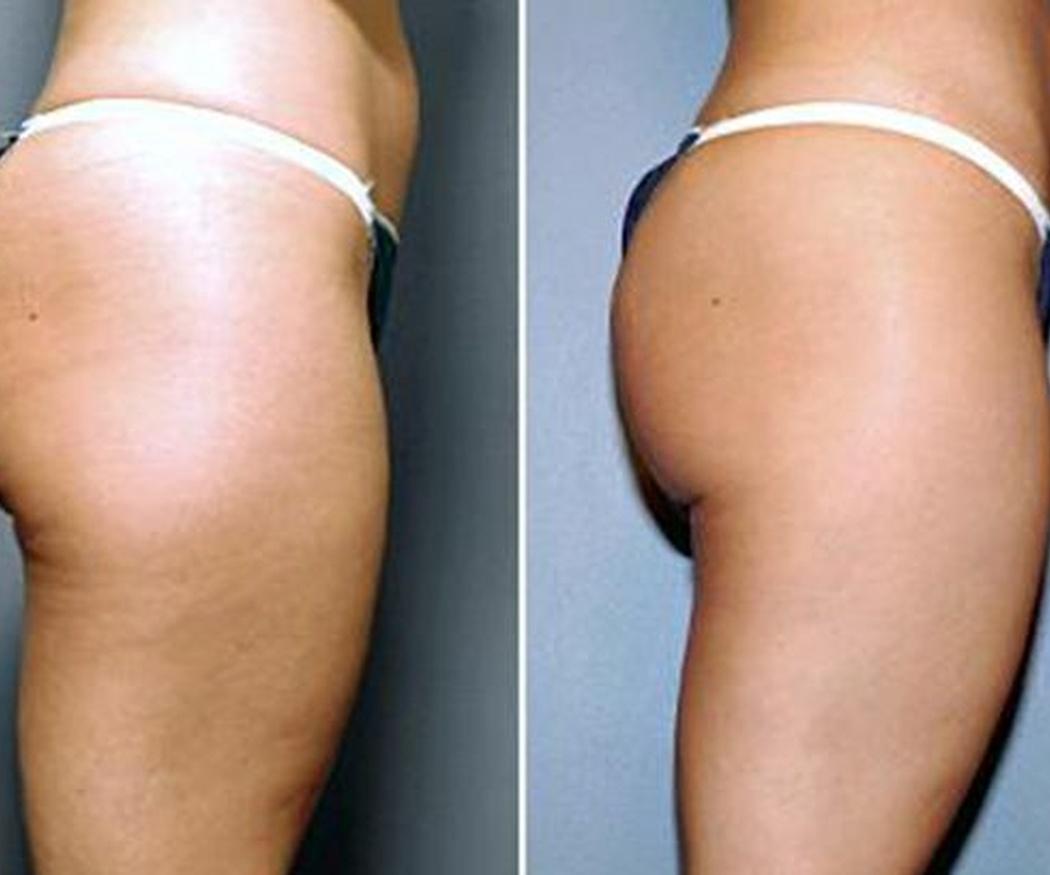 Recomendaciones a seguir tras una liposucción