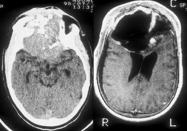 Patología craneoencefálica