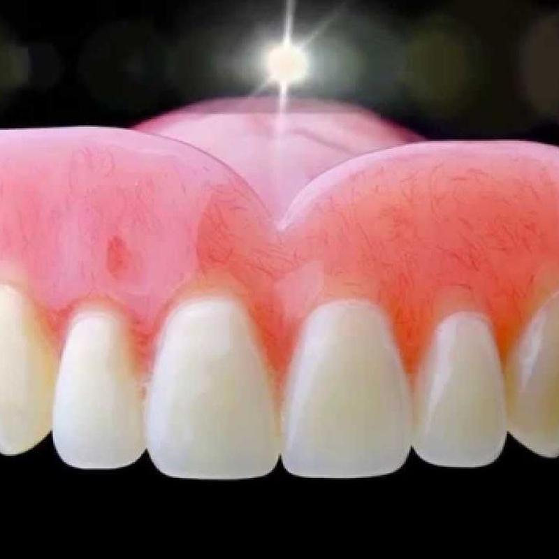 Prótesis dentales: Especialidades de Clínica Dental Castellbisbal