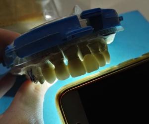 EL laboratorio de prótesis dentales y las nuevas técnologia; El flujo digital