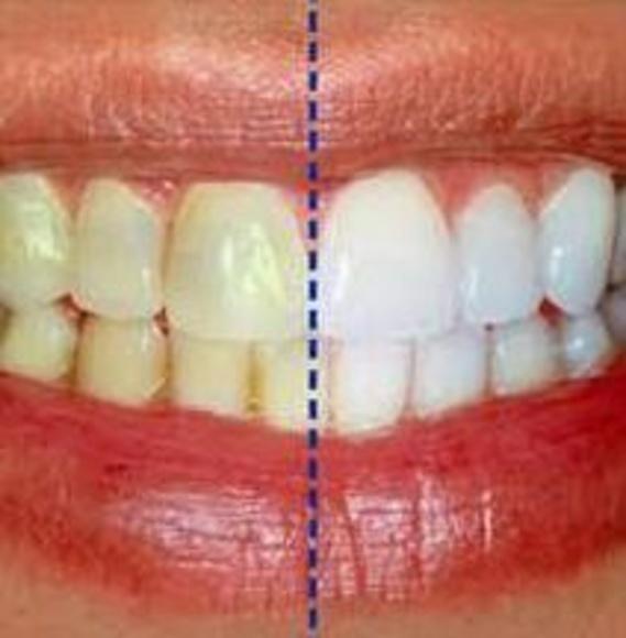 Blanqueamientos: Catálogo de Clínica Dental Dra. Miriam Signorini