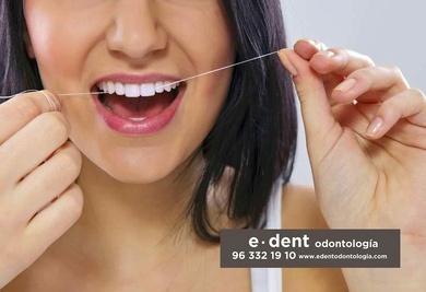 ¿Es efectivo utilizar el hilo dental?