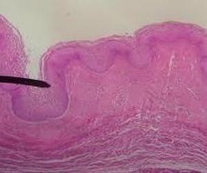Urología de la mujer