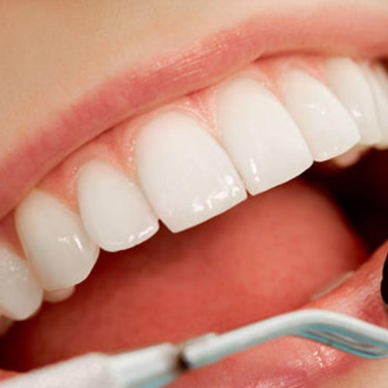 Endodoncia: Servicios de Clínica Dental Flordent