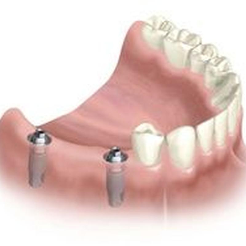 Implantes: Tratamientos de M. José Cadiñanos Díaz Tejeiro, Dra.