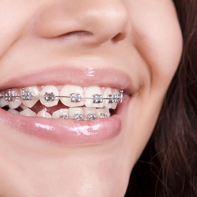 Brakets de autoligado pasivo: Ortodoncia de Isabel Perales Clínica Dental