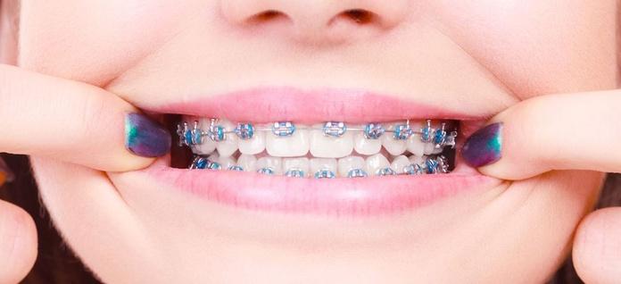 Ortodoncia y ortodoncia invisible: Servicios de BONODEN