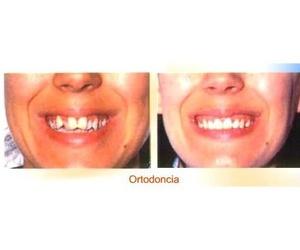Todos los productos y servicios de Clínicas dentales: Clínica Dental Censadent