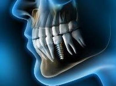 Cuidados de los implantes dentales.