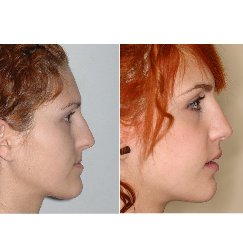 Cirugía ortognática: Servicios médicos de Astar Dent
