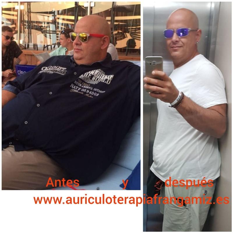 Auriculoterapia para perder peso en Blanes. Auriculoterapia para perder peso en Barcelona