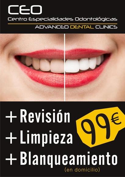 Blanqueamiento dental: Tratamientos dentales de Centro Especialidades Odontologicas