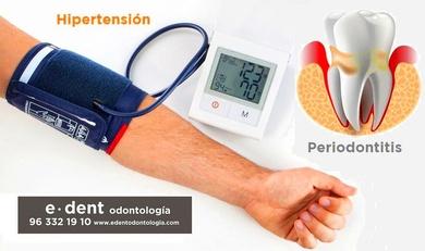 La periodontitis y la hipertensión