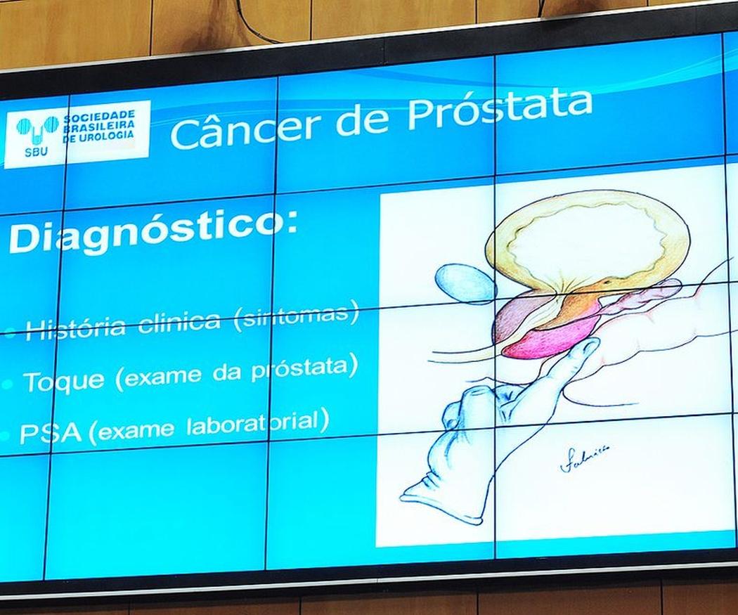 ¿Puede curarse la prostatitis crónica?