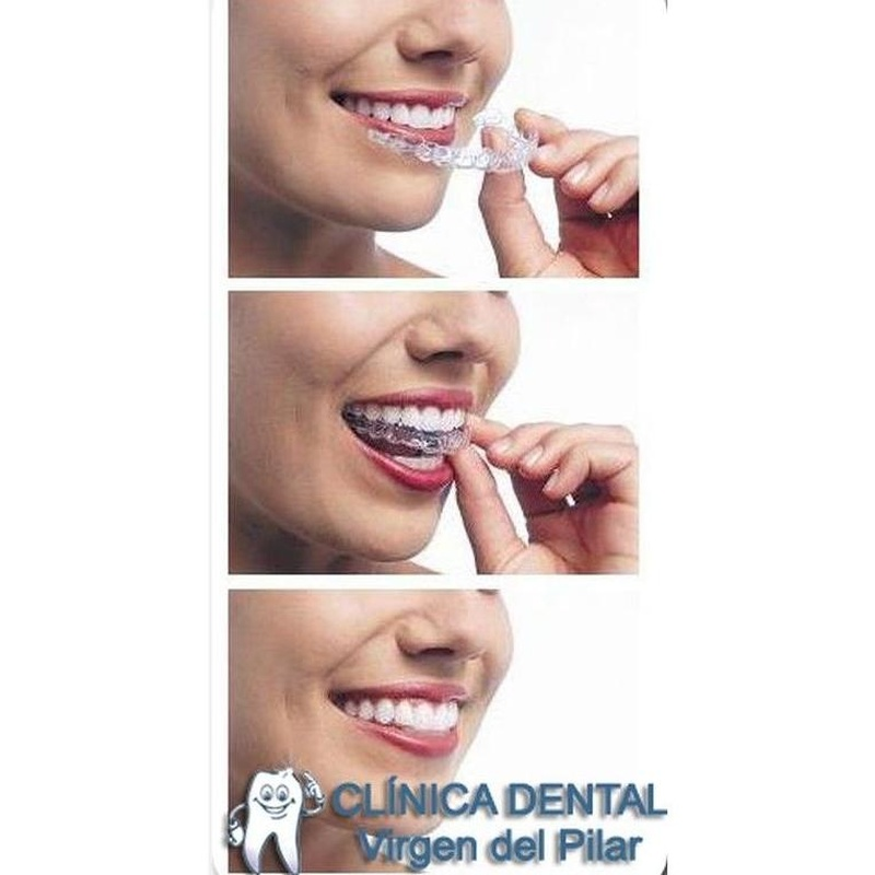 Ortodoncia invisible: Tratamientos de Clínica Dental Virgen del Pilar