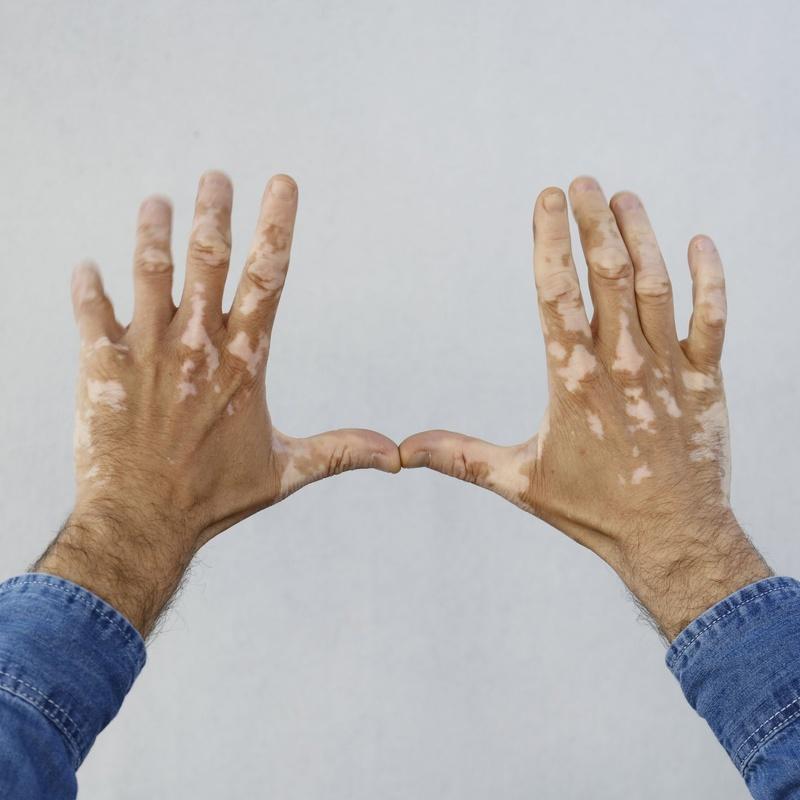 Vitíligo: Dermatología y Dermoestética de Dermatología Socorro Fierro