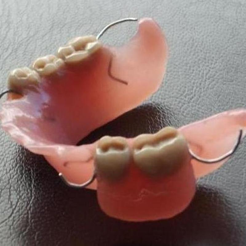 Prótesis parcial inferior