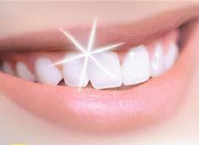 Odontología estética Gijón