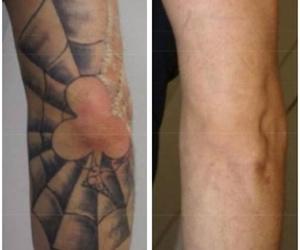 7 sesiones y tatuaje eliminado!