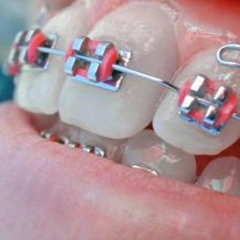 Ortodoncia: Tratamientos de Clinica Dental Dra. Relimpio Ortega
