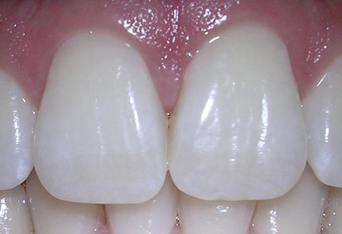 Estética dental: Servicios de Clínica Dental Alodent